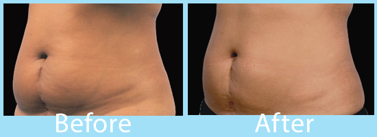 See CoolSculpting before and after images from Spokane.