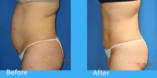 See before-and-after pictures of liposuction in Spokane.