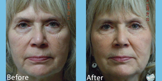See before-and-after images from dermal filler patients from our cosmetic surgery practice in Spokane.
