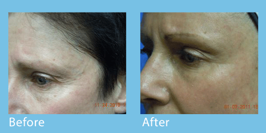Close-ups of a female patient's left eye area before and after a CO2 laser skin treatment to reduce crow's feet wrinkles.