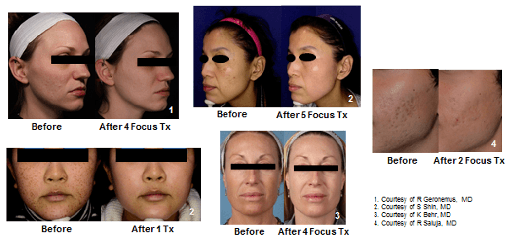 See before-and-after images of PicoFocus laser skin revitalization treatments.