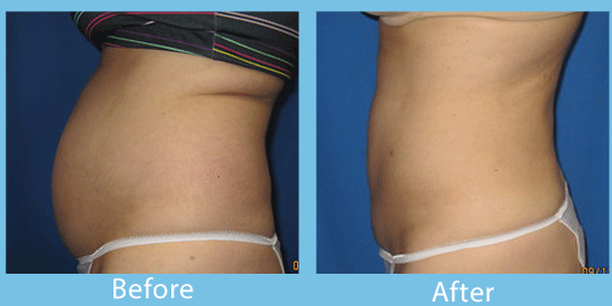 Liposuction and Smartlipo before-and-after images from Spokane cosmetic surgeon.