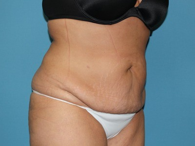 Spokane Liposuction Before After Photos Advanced Aesthetics