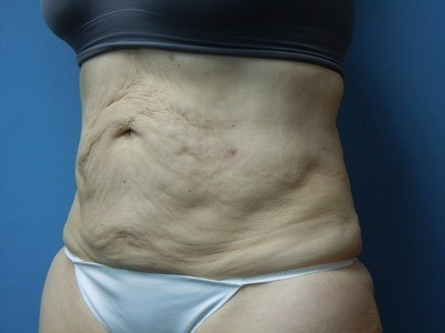 Tummy After Liposuction Treatment