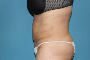 Liposuction Patient After Treatment Left View Tummy