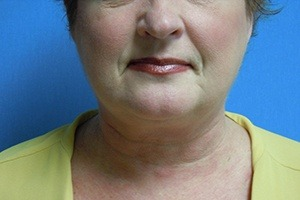 Patient After Liposuction Treatment Chin