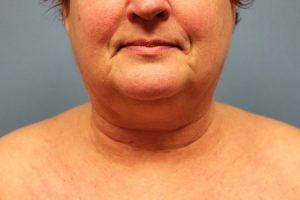 Patient Before Liposuction Treatment Chin