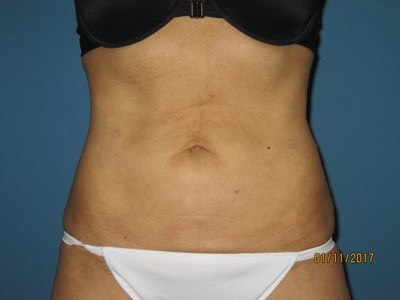 Patient After Liposuction Treatment Stomach Front