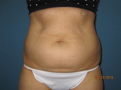 Patient Before Liposuction Treatment Stomach Front