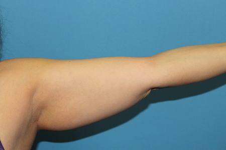 Arm Before Liposuction Treatment