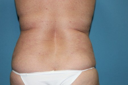 Rear View After Liposuction Treatment