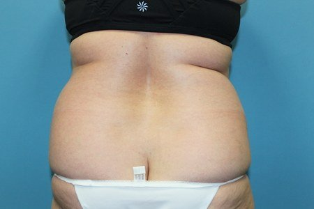 Rear View Before Liposuction Treatment