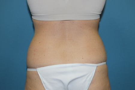Before Liposuction Treatment Back and Buttocks