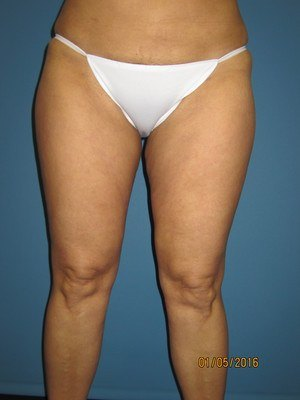 Legs and Tummy After Liposuction Treatment