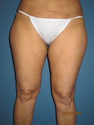 Legs and Tummy Before Liposuction Treatment