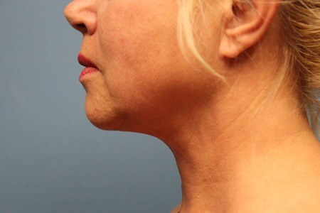 Side View Chin After Liposuction Treatment