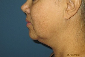 Side View Chin Before Liposuction Treatment