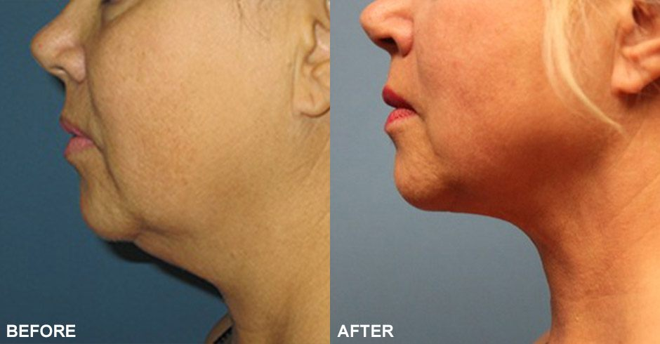 Smartlipo™ for the Neck Before & After