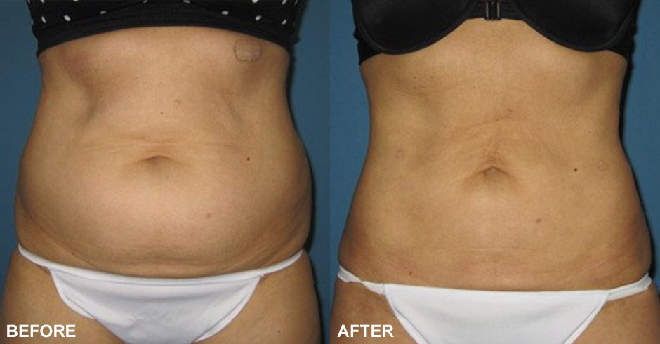 Smartlipo™ Before & after