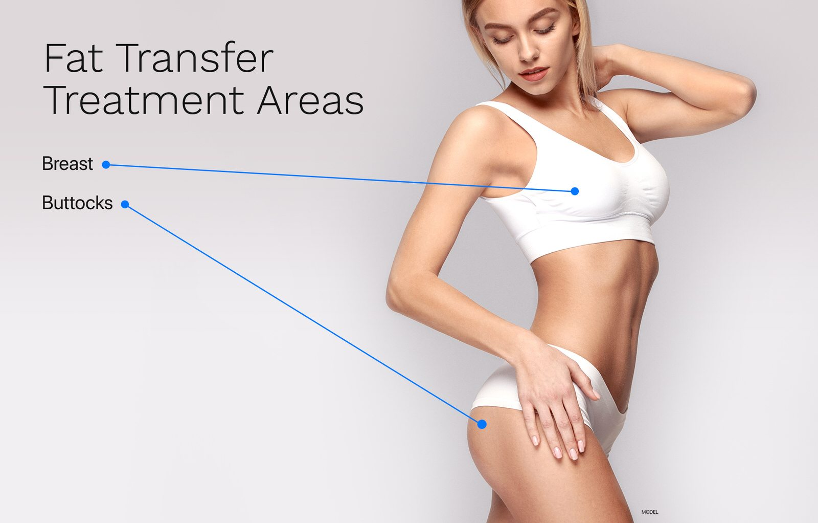 Fat transfer treatment areas for the breasts and buttocks