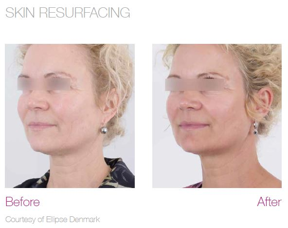 Laser Skin Resurfacing before and after face