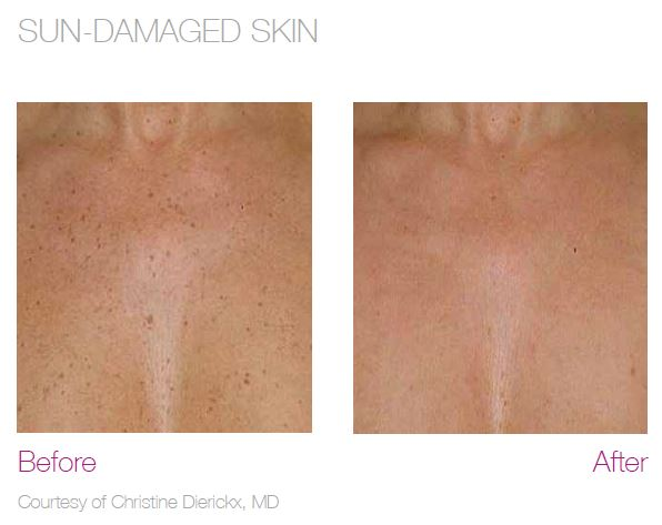 Laser Skin Resurfacing for Sun Damage before and after